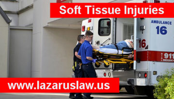 Soft Tissue Injuries are Painful and Slow to Heal - Fort Lauderdale Accident Lawyers